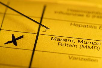 Dresden: Jetzt gibt es ein Masern-Meldetool