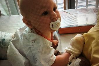 Jonas wurde am Kopf operiert