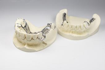 Forschen für Zahnspangen in Chic