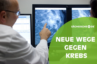 Ist die Mammografie noch zeitgemäß?