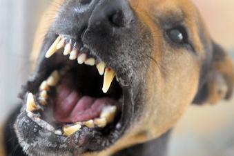 12-Jährige von Hund gebissen