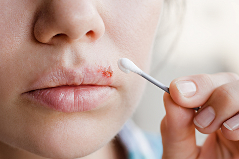 Gesundheit und Wellness: Herpes den Kampf ansagen – ohne Chemie