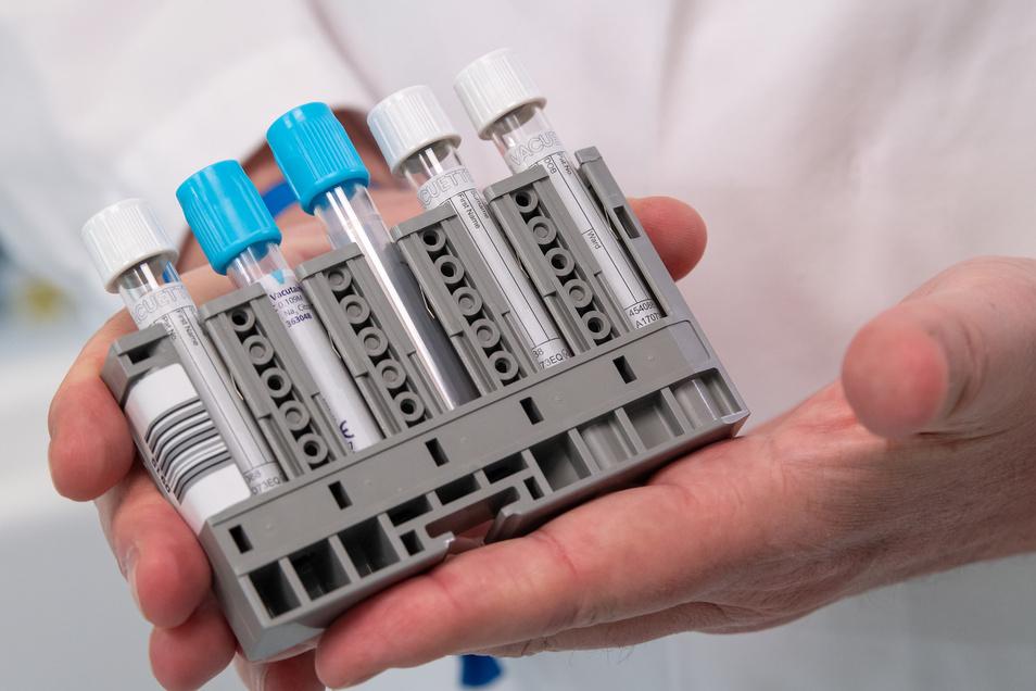 Ein Labormitarbeiter zeigt im Roche-Entwicklungslabor einen Rackpack für den neuen serologischen Antikörpertest.