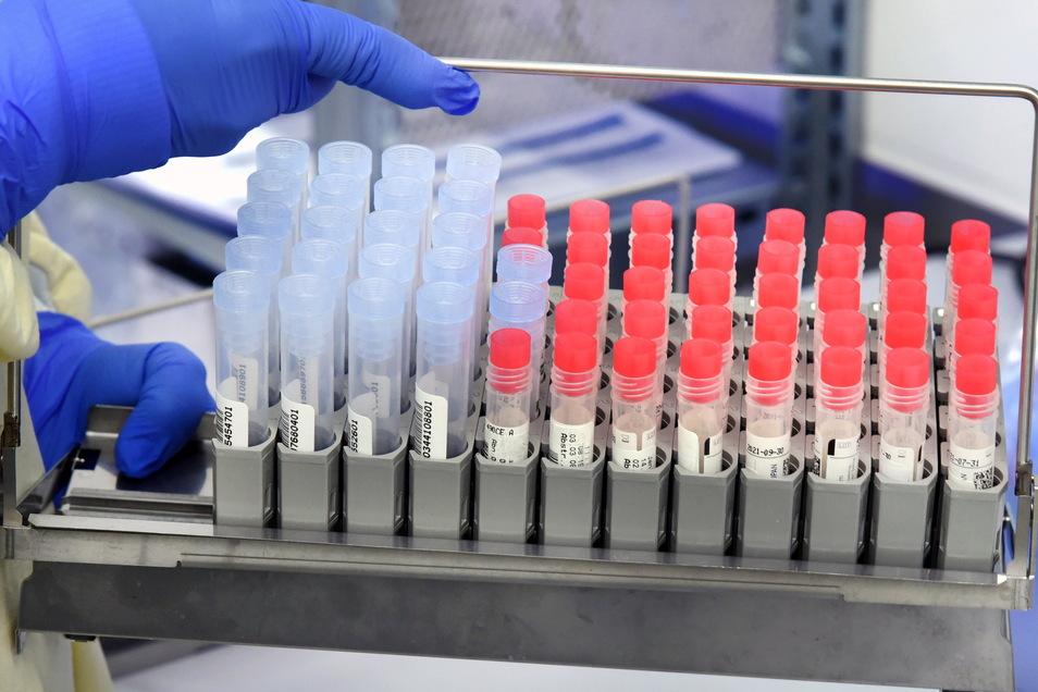 In einem Labor entnimmt eine Mitarbeiterin SARS-CoV-2-Proben aus einem PCR-Analysegerät. Wer sich derzeit mit dem Coronavirus infiziert, hat es in den meisten Fällen mit der Virusvariante B.1.1.7 zu tun.