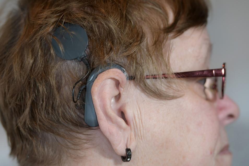 Marion Oppelt mit den sichtbaren Teilen des Cochlea-Implantats: Die Scheibe über dem Ohr ist die Sendespule, das Gerät hinter dem Ohr der Audioprozessor. Mit dieser Technik hört sie seit Jahrzehnten endlich wieder gut.