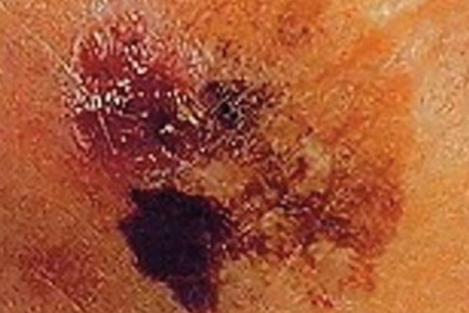 B wie Begrenzung: Die Ränder von harmlosen Muttermalen sind oft scharf begrenzt. Wirken die Ränder verwaschen oder gezackt, ist das ein Warnsignal.
