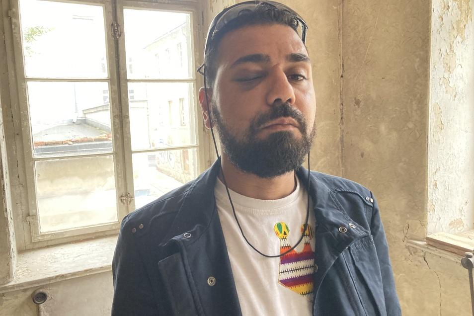 Saleh Abdelrahim wurde massiv im Gesicht und Kopf verletzt.