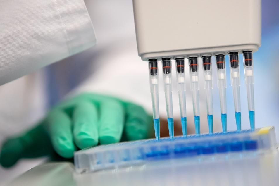 In einem Labor wird eine Probe auf Antikörper gegen das Coronavirus getestet.