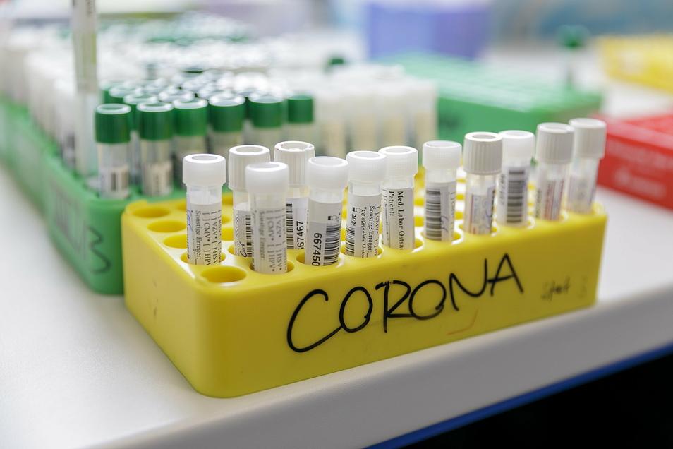 Symbolfoto: Am Freitag informierte der Landkreis über 264 neue Nachweise des Coronavirus, den höchsten Anstieg in dieser Woche.