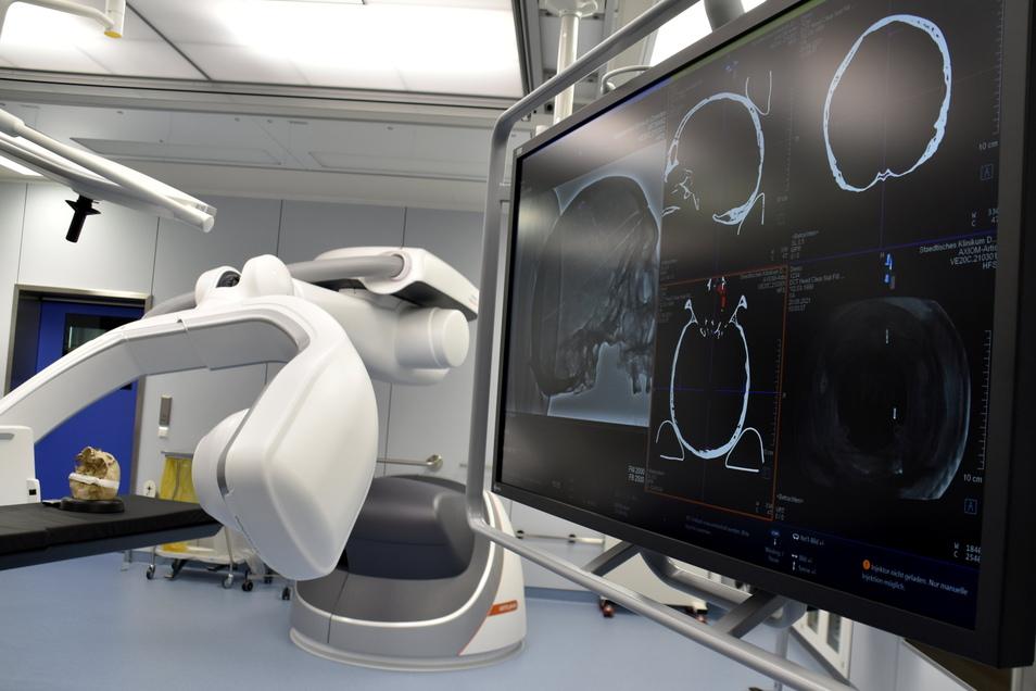 Während der Patient auf dem OP-Tisch liegt, scannt diese futuristisch anmutende Anlage die Gefäße im Körper.