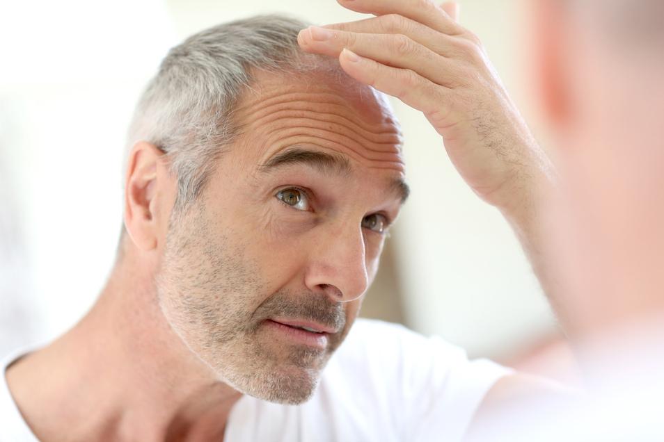 Auch wenn in vielen Fällen der Haarausfall vorbestimmt ist, lässt er sich verlangsamen.