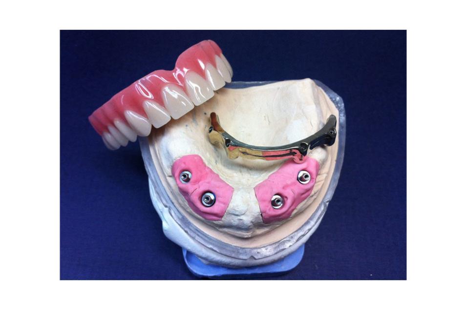 Mit moderner Technik und Fachpersonal entsteht der perfekte Zahnersatz.