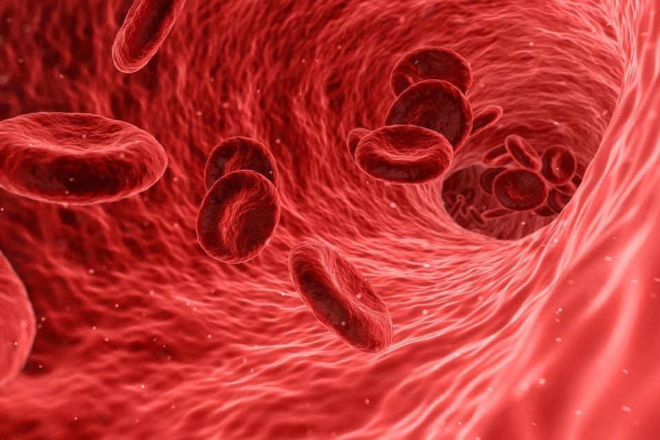 Das Sars-CoV-2-Virus scheint in den Venen zur Bildung von Blutgerinnseln zu führen, die als sogenannte Lungenembolie in die großen Lungengefäße gelangen.