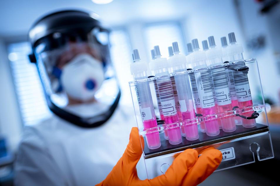 Eine wissenschaftliche Mitarbeiterin hält Coronavirus-Testproben im Niedersächsischen Landesamt für Verbraucherschutz und Lebensmittelsicherheit (LAVES) in der Hand.