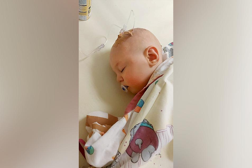 Jonas nach der Operation wegen seiner Fehlbildungen in einem Hamburger Krankenhaus.