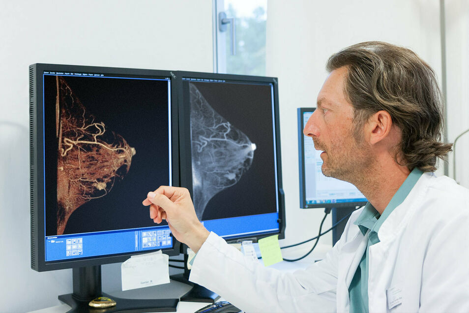 Am Anfang steht die Diagnostik: Der Radiologe Karsten Ridder schaut sich die Bilder eines Mamma-CT zur Früherkennung von Brustkrebs an.