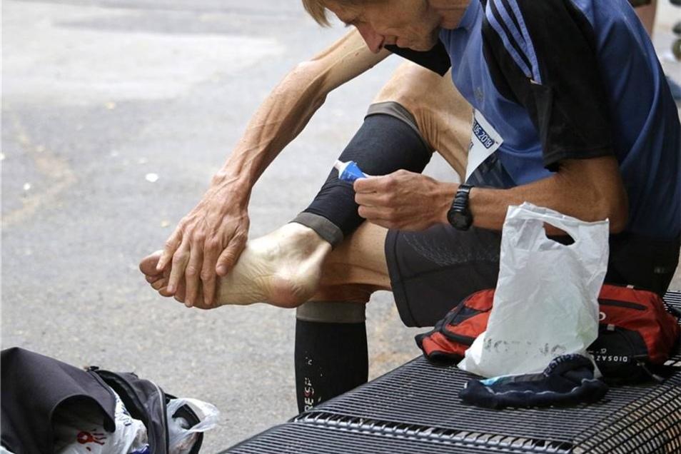 Dieser Läufer pflegt seine brennenden Fußsohlen mit einer Creme.