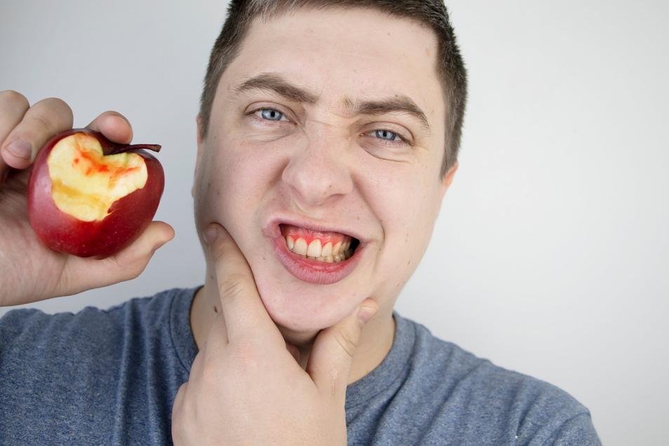 Alarmzeichen rot: Das Zahnfleisch blutet beim Biss in den Apfel.