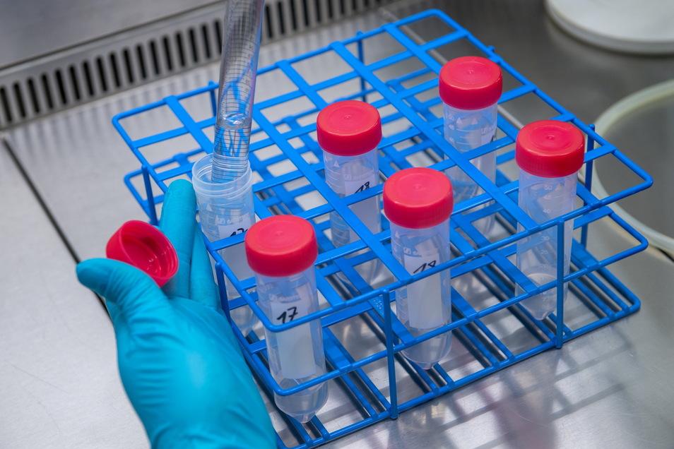 In einem Labor des Landesamtes für Umweltschutz Sachsen-Anhalt werden Wasserproben aufbereitet. Die Wissenschaftler untersuchen hier Abwasser auf den Coronavirus Erreger.