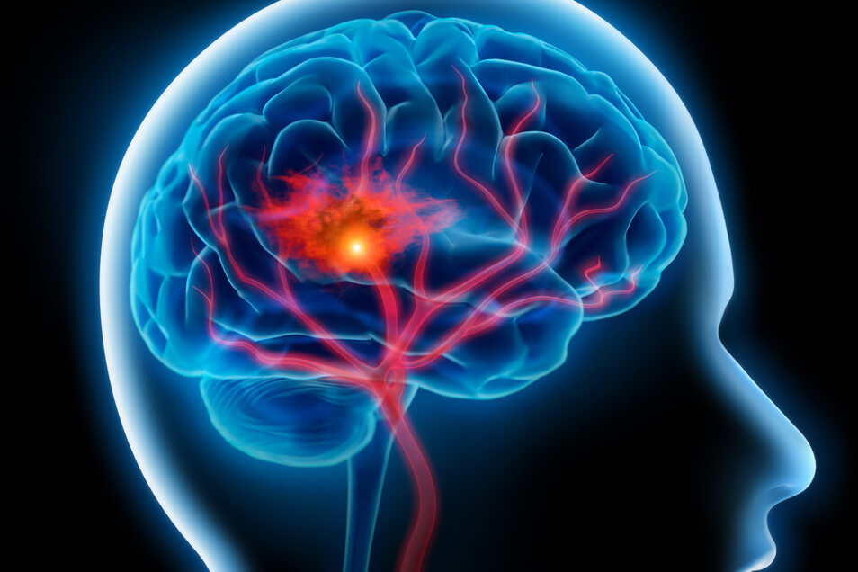 Wie bildet sich das typisch menschliche Gehirn?