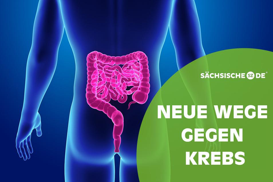 Die allermeisten Patienten in Deutschland müssen keine weiten Wege zum nächsten Darmkrebszentrum zurücklegen.