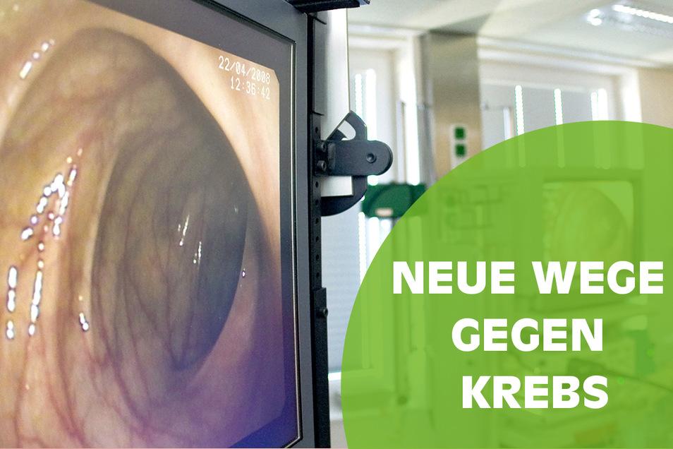 Bei einer Darmspiegelung kann sich der Arzt am Monitor die Darmwand des Patienten genau ansehen.