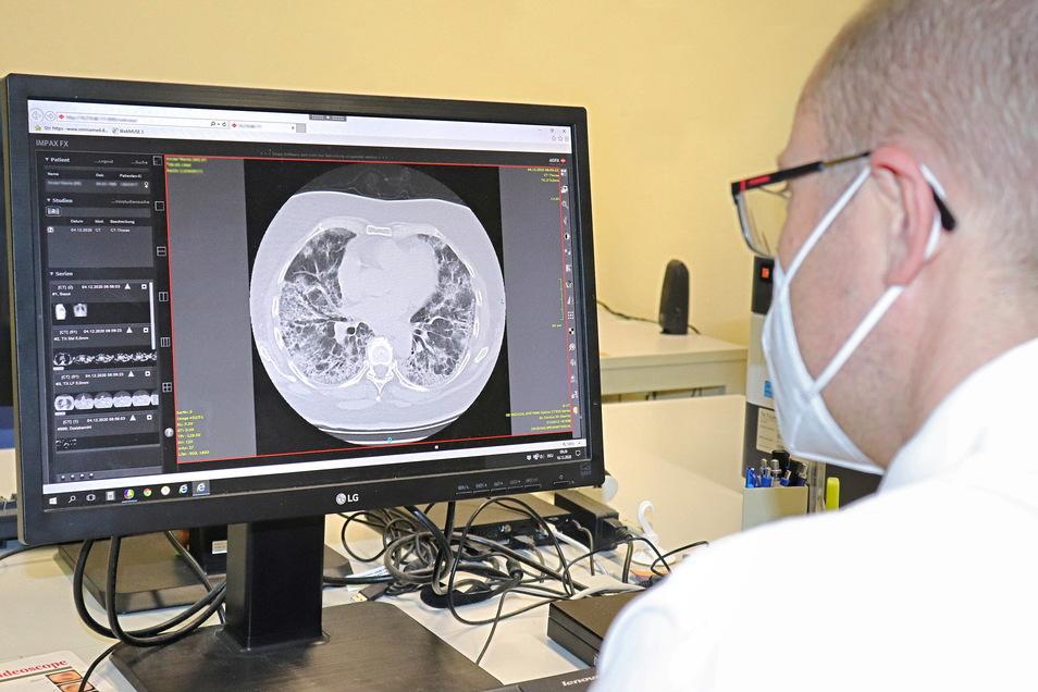 Der Pneumologe Dawid Gocal zeigt am Bildschirm im Malteser Krankenhaus St. Carolus in Görlitz den Querschnitt einer kranken Lunge. Lungenkrankheiten sind ein Schwerpunkt des Carolus-Krankenhauses.