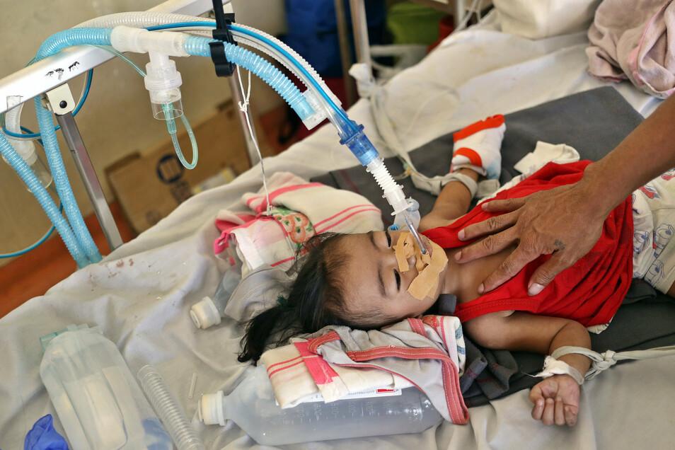 Philippinen, Manila: Ein Kind, das an Masern erkrankt ist, wird in einem Krankenhaus behandelt.