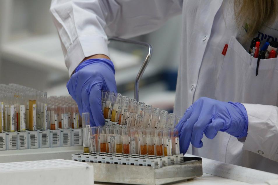 Bis zu 72 Stunden dauert es derzeit, bis die Labore die Testergebnisse von Abstriche aus dem Landkreis Mittelsachsen vorlegen.