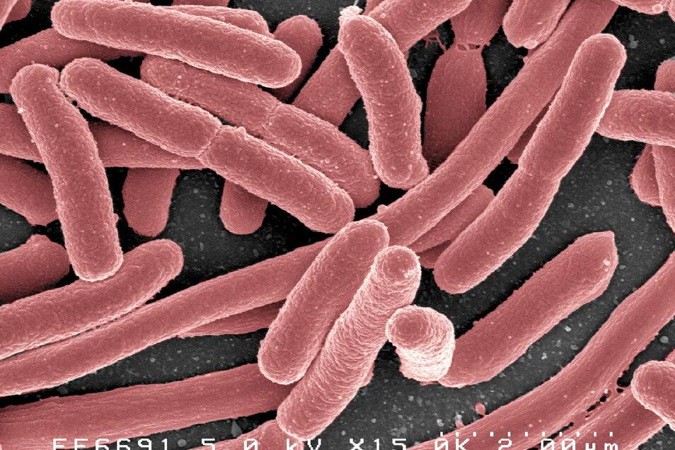 Das Bakterium Escherichia coli ist im menschlichen und tierischen Magen-Darm-Trakt zu finden. Es hat keinen guten Ruf. Einige Stämme des Bakteriums können Durchfallerkrankungen verursachen.