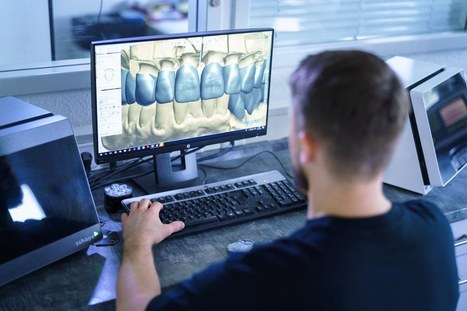 Am Computer kann aus den digitalen Daten ein Modell für den gewünschten Zahnersatz geplant werden.