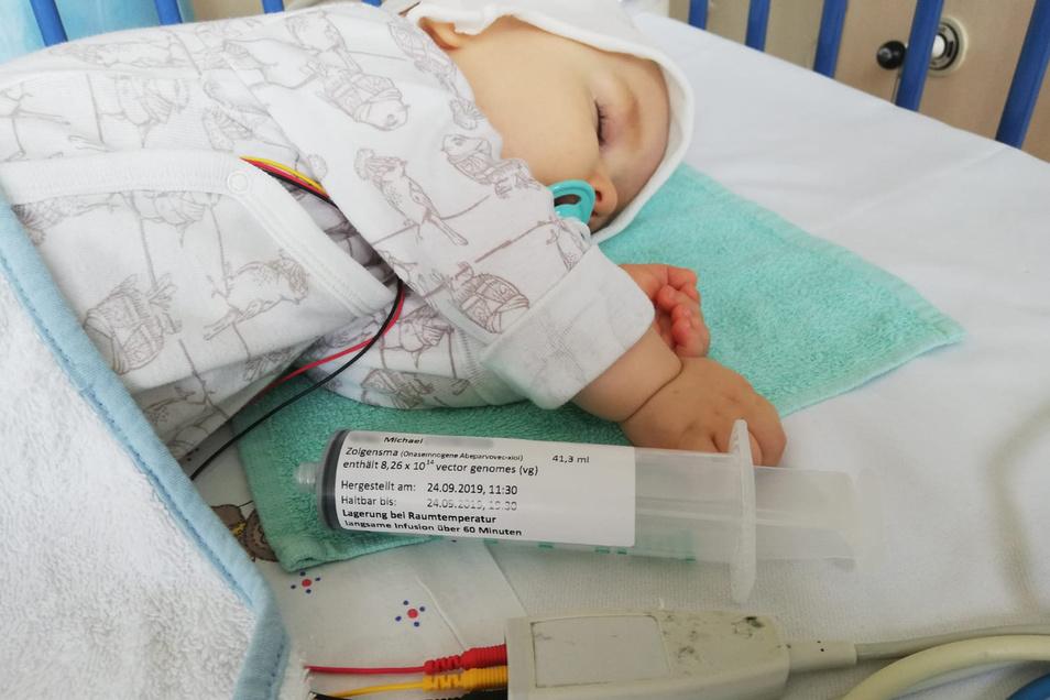 Der einjährige Michael schläft, während er eine Injektion mit dem Genpräparat Zolgensma gegen spinale Muskelatrophie bekommt.