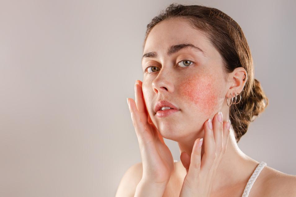 Heilbar ist die entzündliche Hauterkrankung Rosacea nicht, aber mit der richtigen Therapie können die Symptome verschwinden.