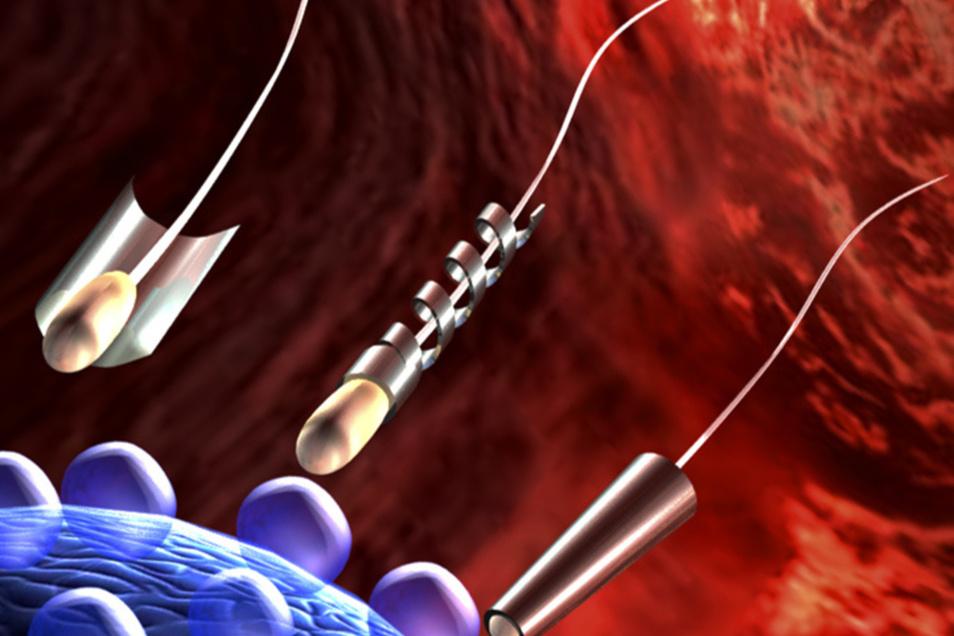 Spermien als Transportmittel. Die Visualisierung zeigt die drei Methoden: durch ein chemisches Trägermaterial (l.), durch die Drehbewegung einer Helix aus Metall (Mitte) und durch einen Biohybriden in Röhrchenform, der aus superdünnem Metall besteht.