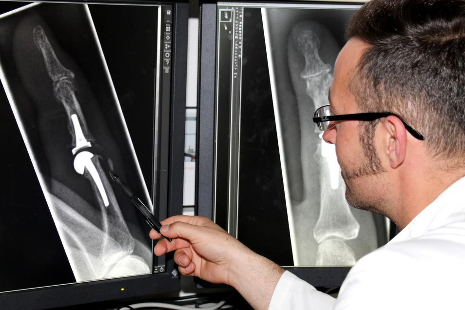Handchirurg Christian Otis Lorenz vor einem Röntgenbild: Welche Behandlung hilft bei Arthrose in den Fingern?