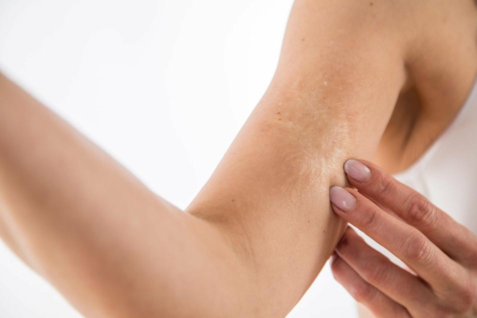 Manchmal zahlt die Krankenkasse für die Narbenbehandlung - das kann zum Beispiel der Fall sein, wenn sich der Arm nicht mehr durchstrecken lässt.