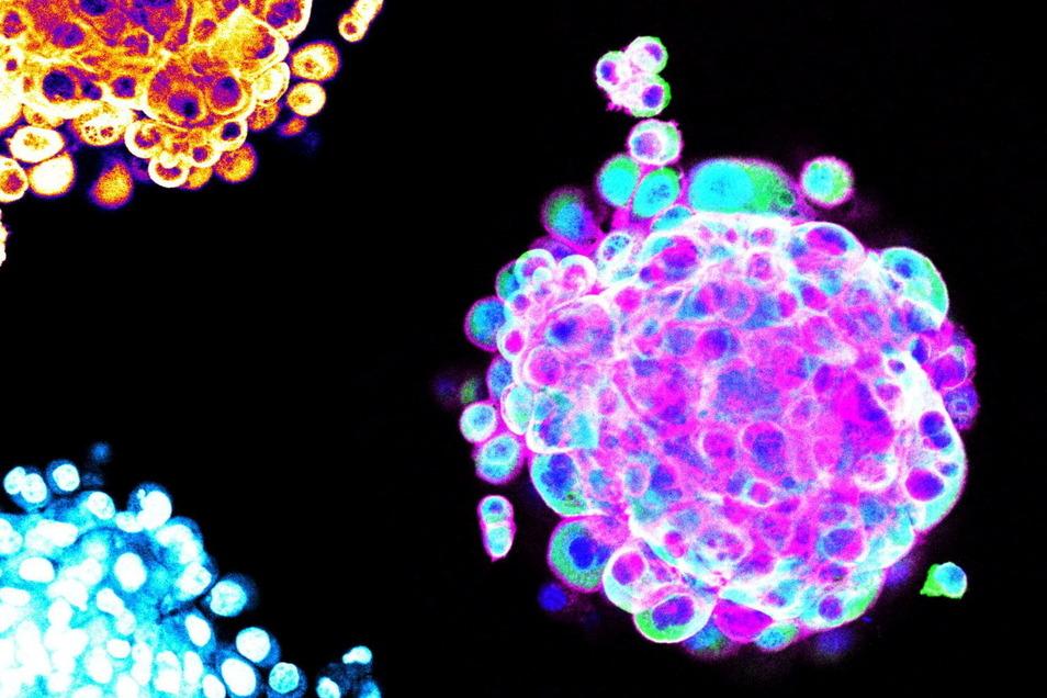 In Hydrogelen bilden sich aus Krebszellen dreidimensionale Zellhaufen, sogenannte Spheroide, hier farbig dargestellt.