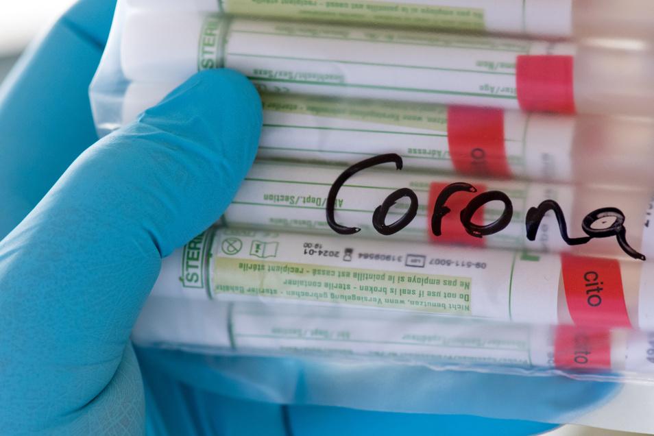 Die Zahl der an Corona Erkrankten ist in Mittelsachsen auf 238 gestiegen.